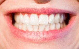 """Una bocca sana… """"fa bene al cuore"""""""